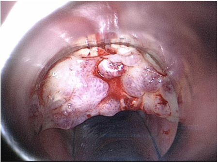 Laryngeal Tuberculosis